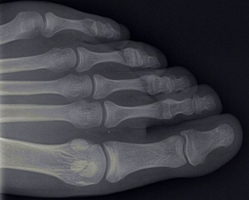 A new urinalysis technique can detect bone loss earlier than current methods.